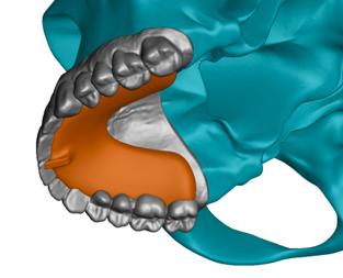 Harmonizer - Deprogrammer nach CranioPlan Analyse